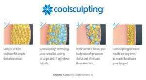 CoolSculpting® Fat Freezing Beckley, WV & Charleston, WV