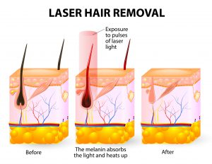 Laser Hair Removal Beckley, WV & Charleston, WV