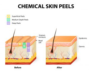 http://www.dreamstime.com/royalty-free-stock-photo-chemical-peels-peeling-procedure-chemexfoliation-human-skin-layers-image55989325