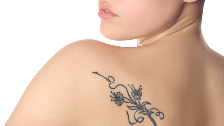Paine, Tatoo Removal - Image