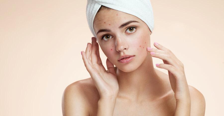 , Acne Treatment