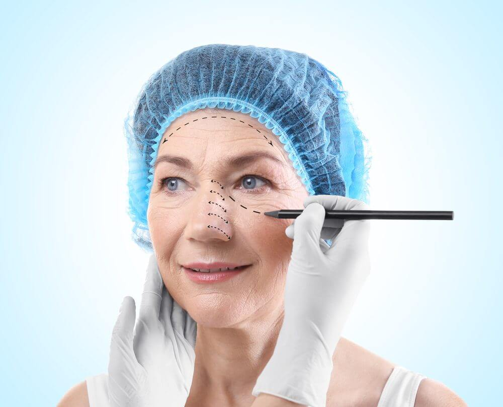 What Happens During Blepharoplasty?
